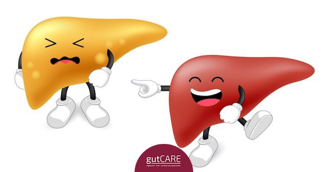 fatty-liver-treatment-cost-singapore.jpg
