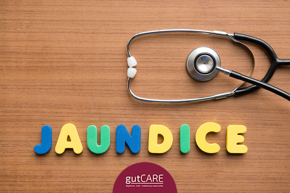 understanding-what-is-jaundice-and-how-it-can-be-treated-thumbnail.jpg