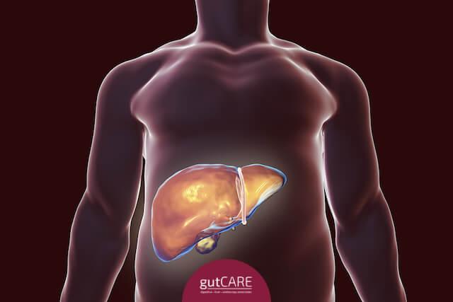 Gastroenterology Singapore, Hepatitis B Specialist Singapore