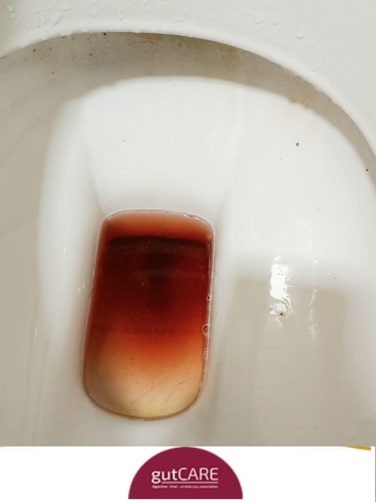 Blood-in-toilet-1200x1600.jpg